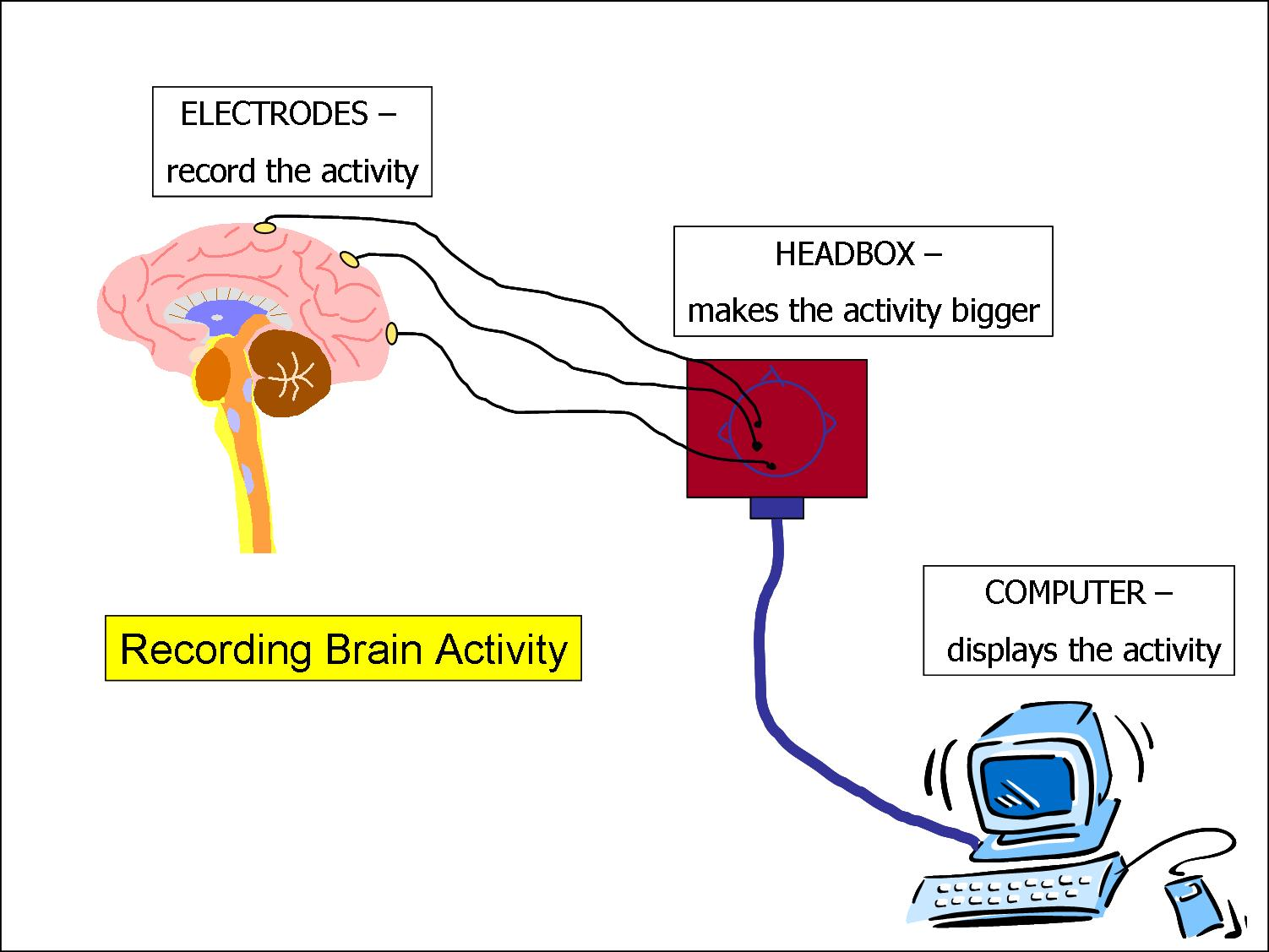 Remarkable Electroencephalogram Eeg Wiring Digital Resources Helishebarightsorg