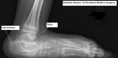 Subtalar Or Talonavicular Fusion Arthrodesis